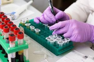 test diasorin sanità