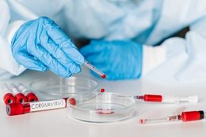 Coronavirus: 135 nuovi casi, 1,36% rapporto tra tamponi e positivi Casi in aumento a causa del focolaio nel mantovano. Screening di tutti i lavoratori della scuola
